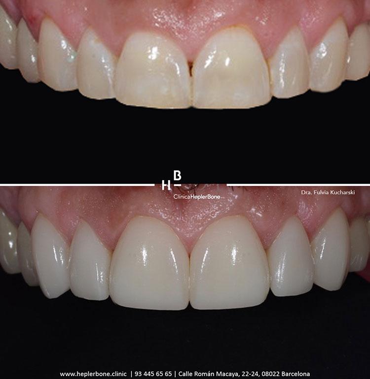 sonrisa-perfecta-carillas-composite-hepler-bone-clinica