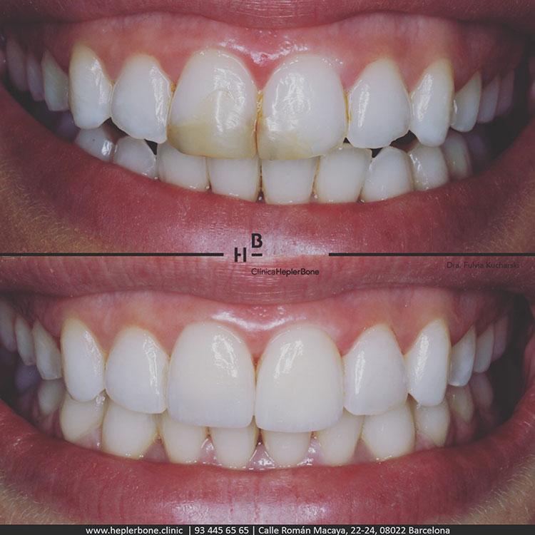 sonrisa-perfecta-carillas-porcelana-hepler-bone-clinica