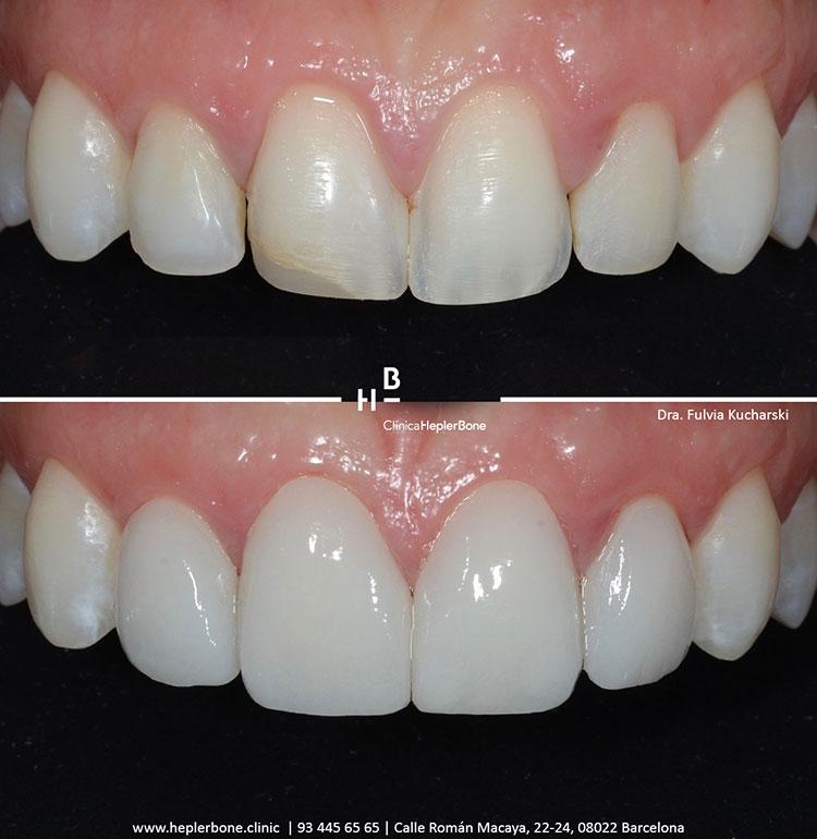 sonrisa-perfecta-microcarillas-hepler-bone-clinica